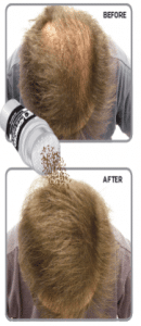 balding patches before after thumb