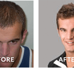 John Jack Anthony Hair Loss Before After