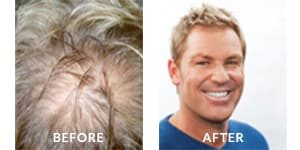 Shane Warne Before After Hair Loss