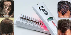 laser Comb And Hair Pics
