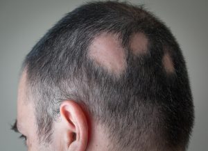 Alopecia-Male