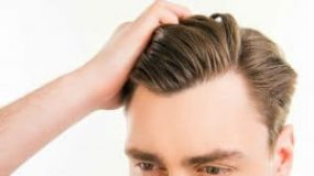 What Is A Widow's Peak And How To Get Rid Of It