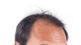 Male Pattern Baldness Treatment – Cure and Stop Hair Loss in Men