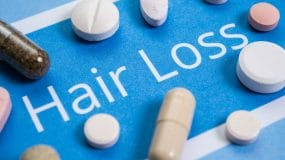 Hair Loss Tablets
