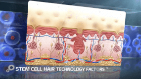 Stem Cell Treatment in South Africa
