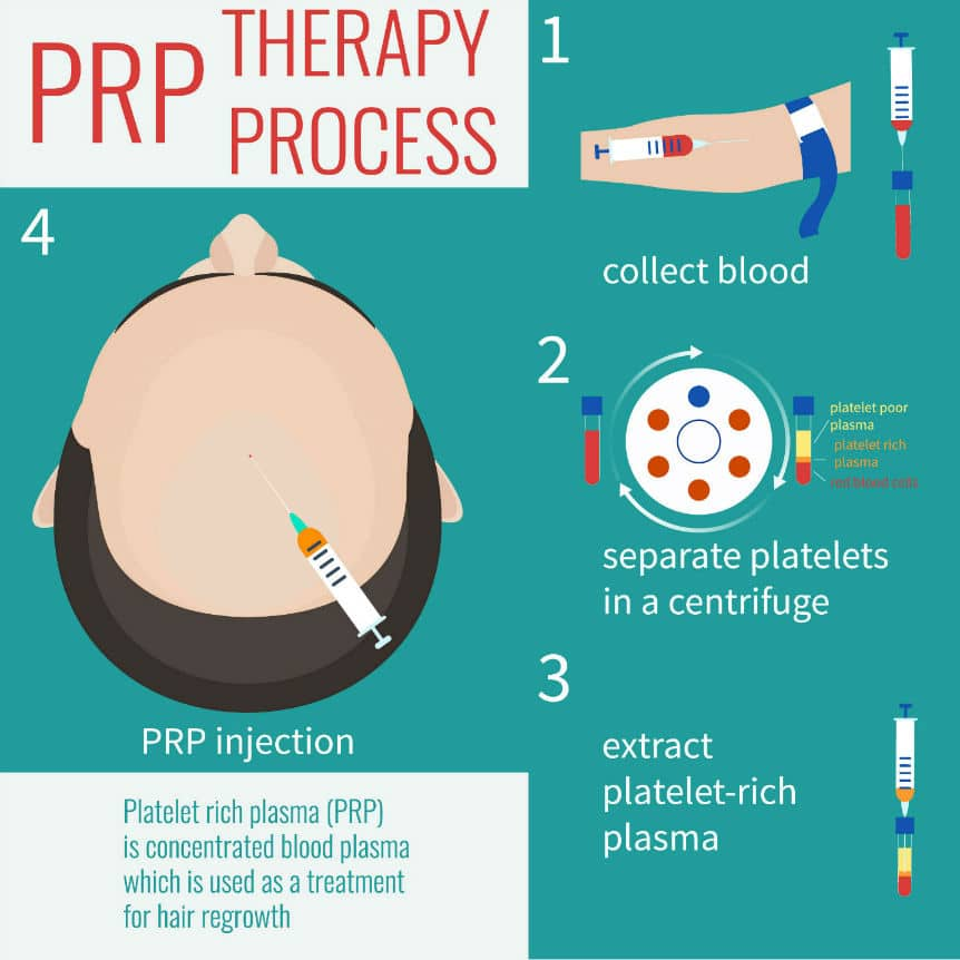What is PRP Injection Treatment