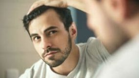 A Guide to the Most Common Hair Loss Conditions