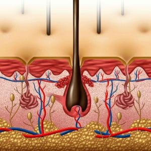 Damaged Hair Follicles