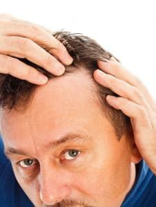 Hair-Loss-Symptoms